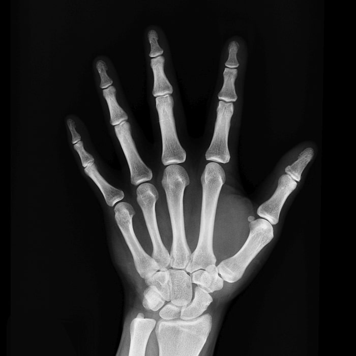 RSMC Rheumatology